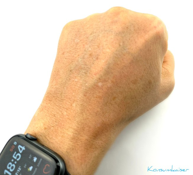 KK Pigmentflecke Hand Mai 2021